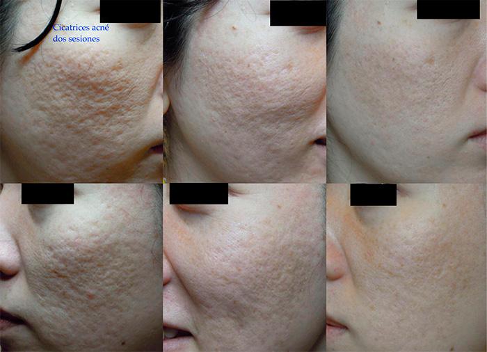 tratamiento laser para marcas del acne